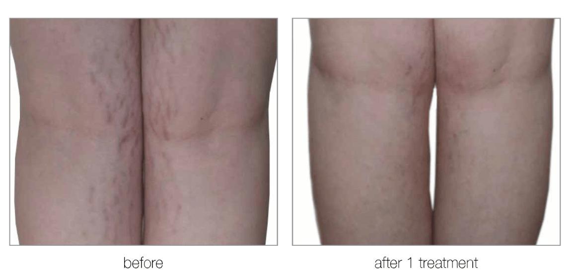 Resurfacing-Scars